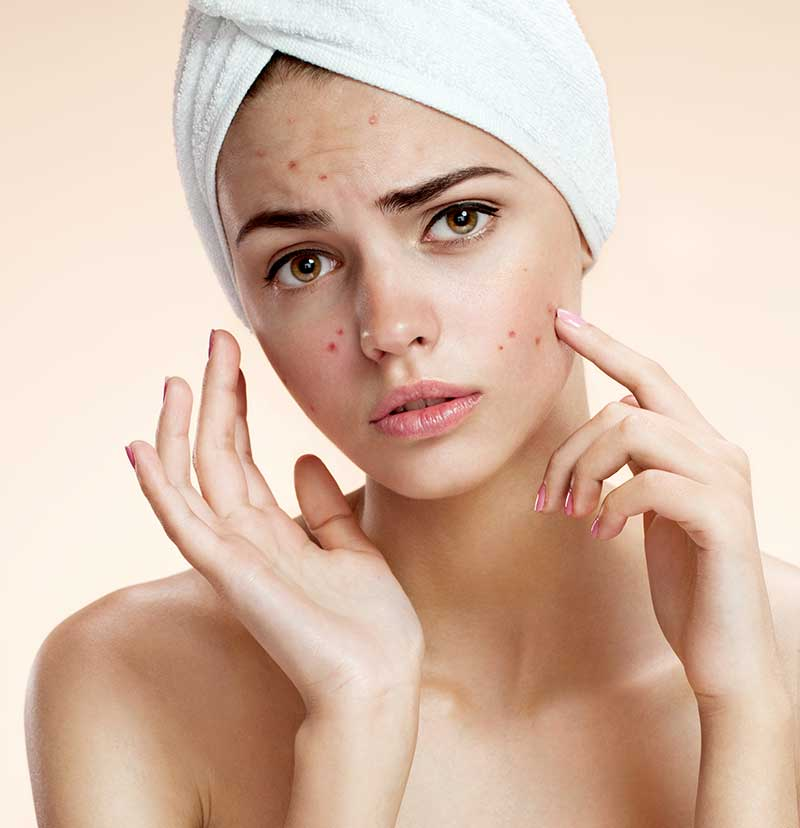 Acne-management-singapore2